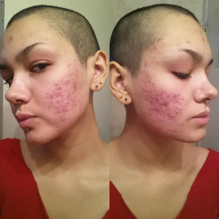 how to clear hormonal acne naturally