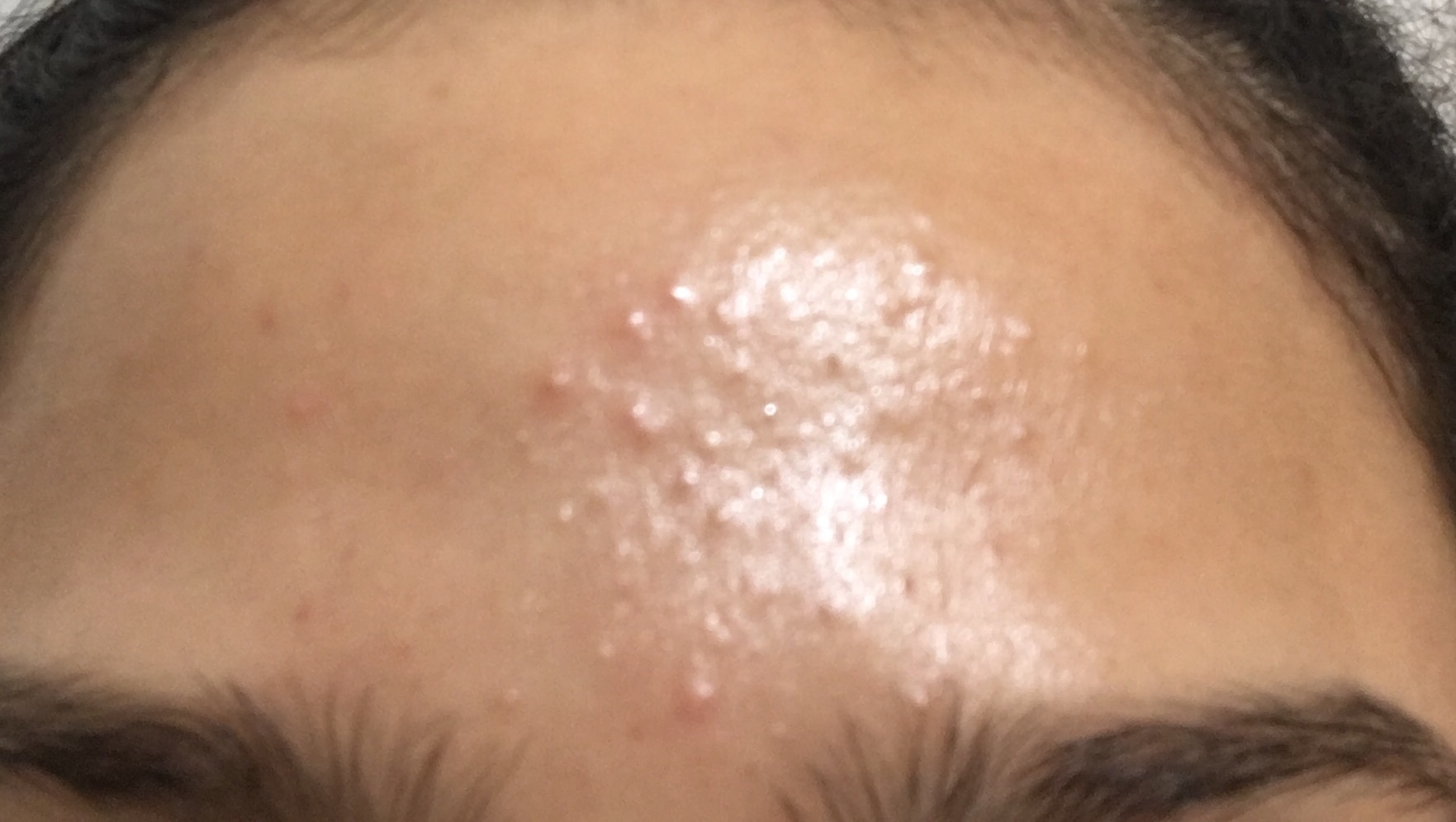 Small bumps over forehead? Read more - General acne ...