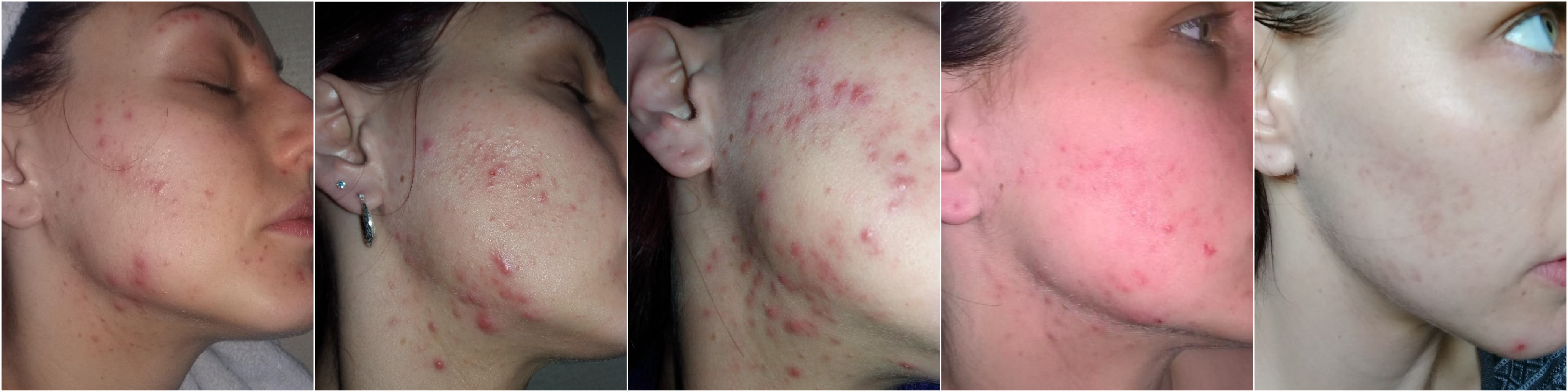 does accutane fade acne scars