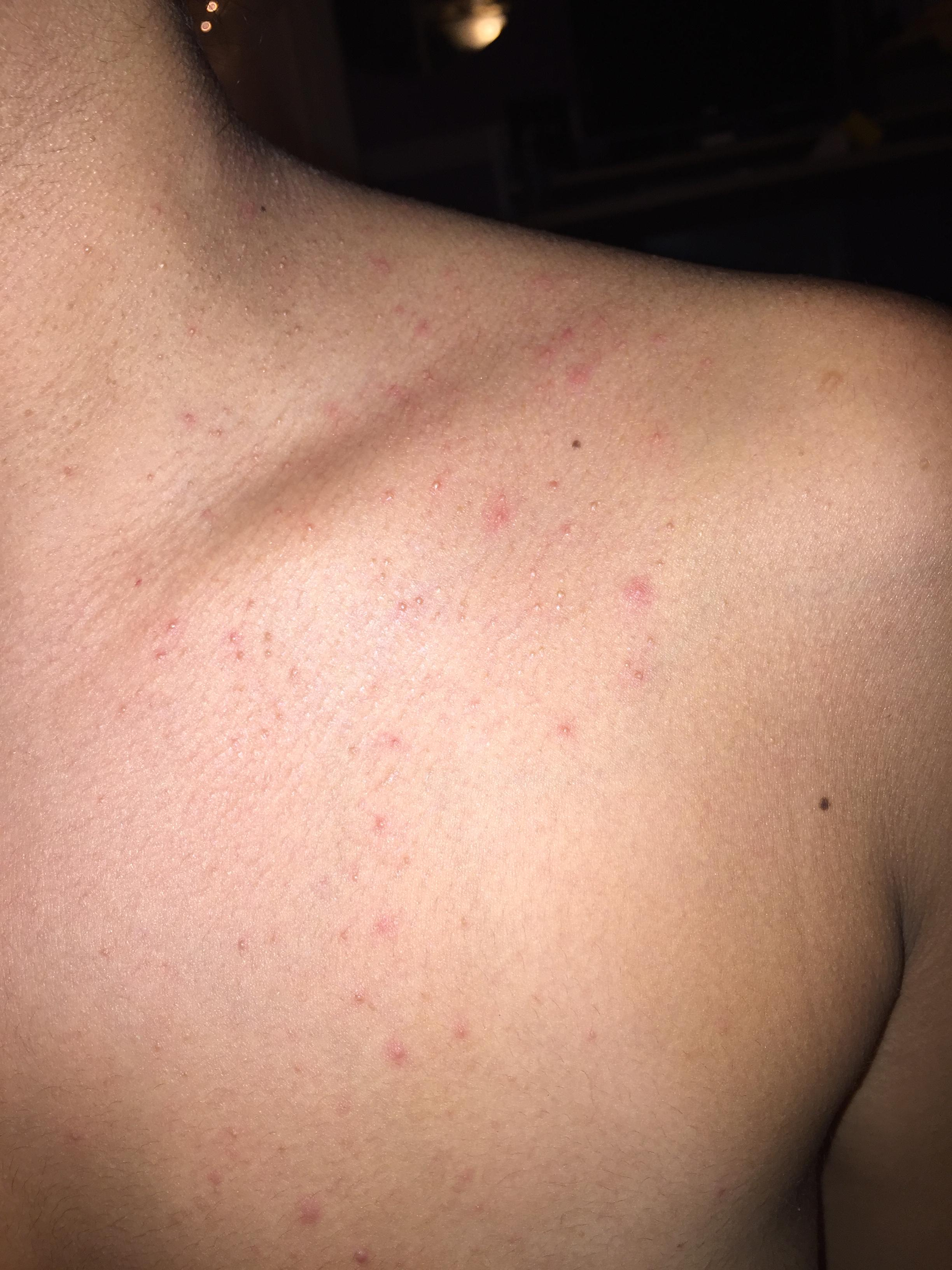 how to get rid of folliculitis on chest