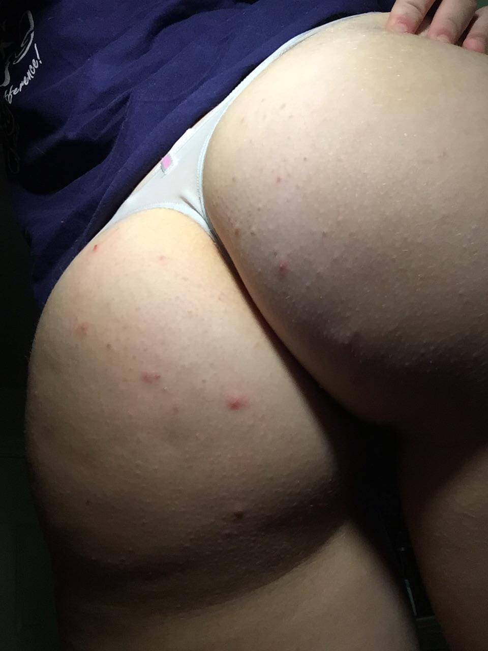 girl-itchy-butt