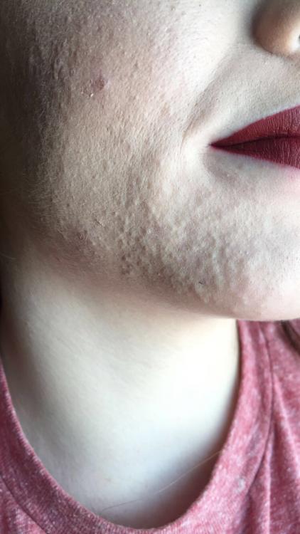 Moderate acne face