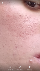 Ice pick or enlarged pores?