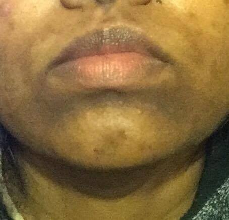 Back acne scars