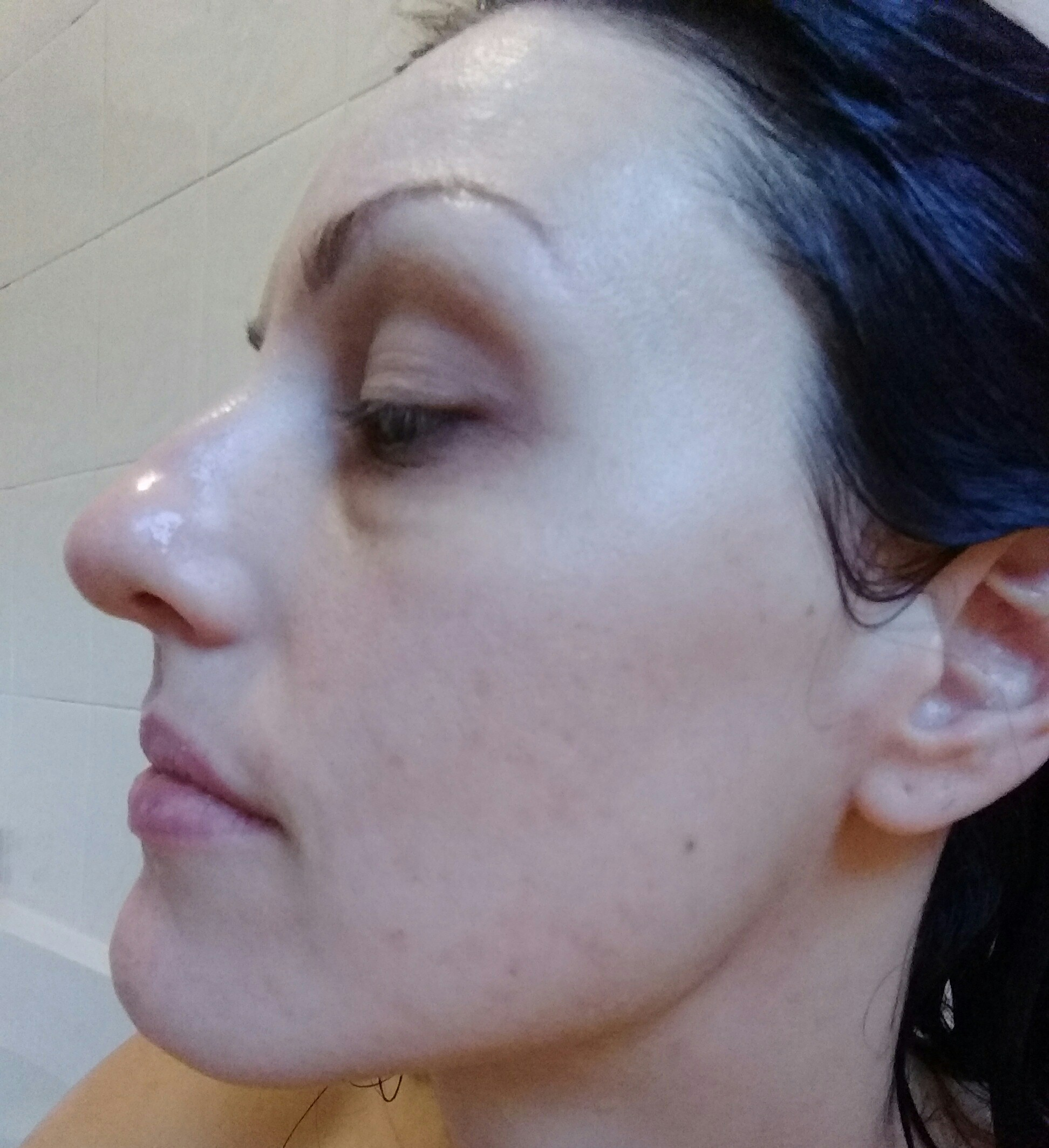 accutane treatment for adult acne
