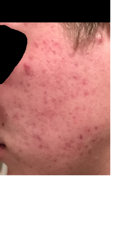 acne help.png