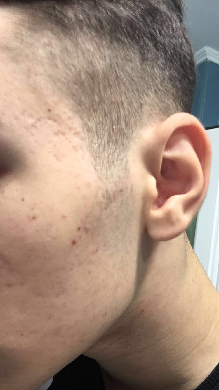 Acne Scars After Accutane Pics Scar Treatments Acne Org