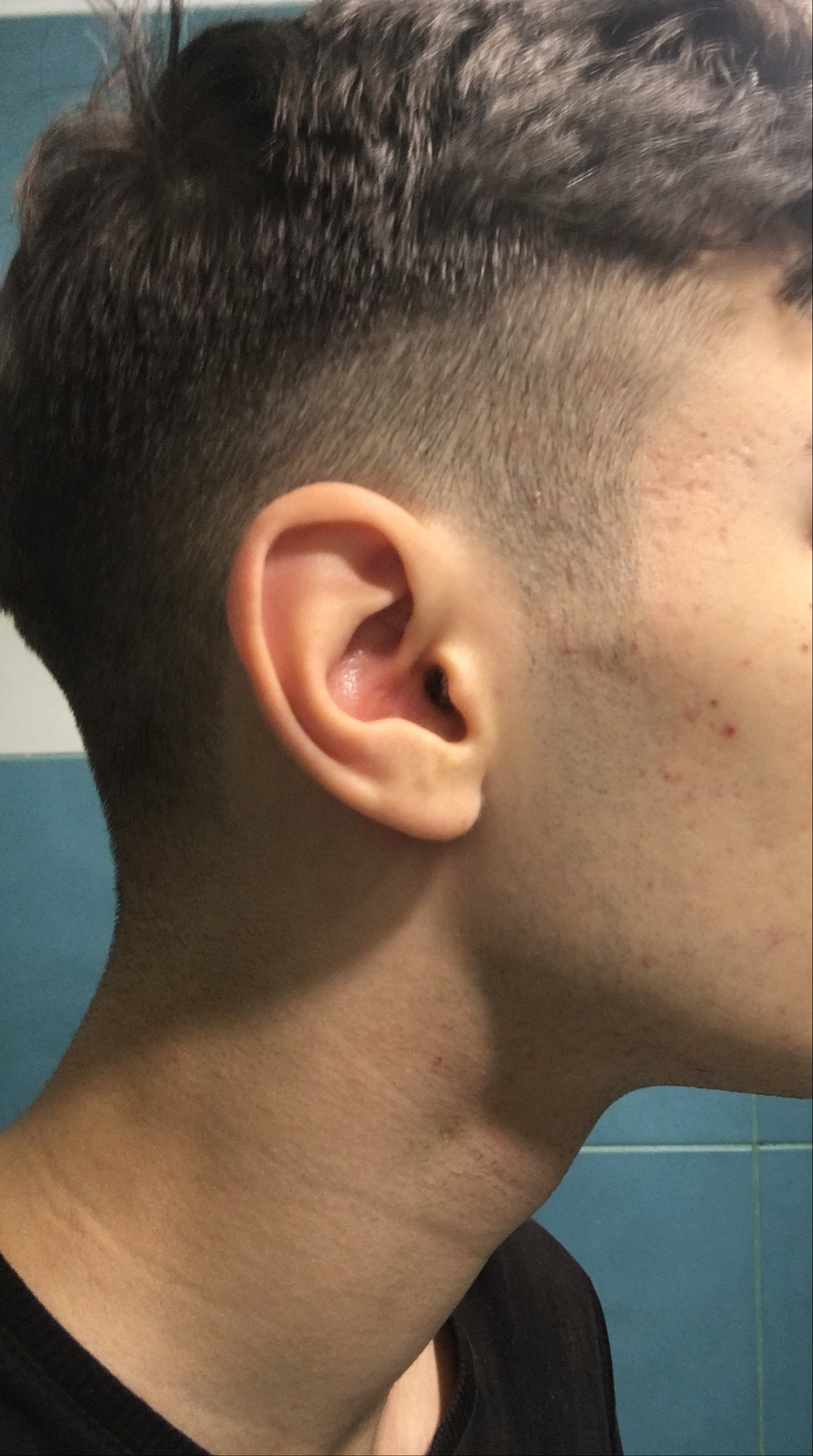 acne after accutane