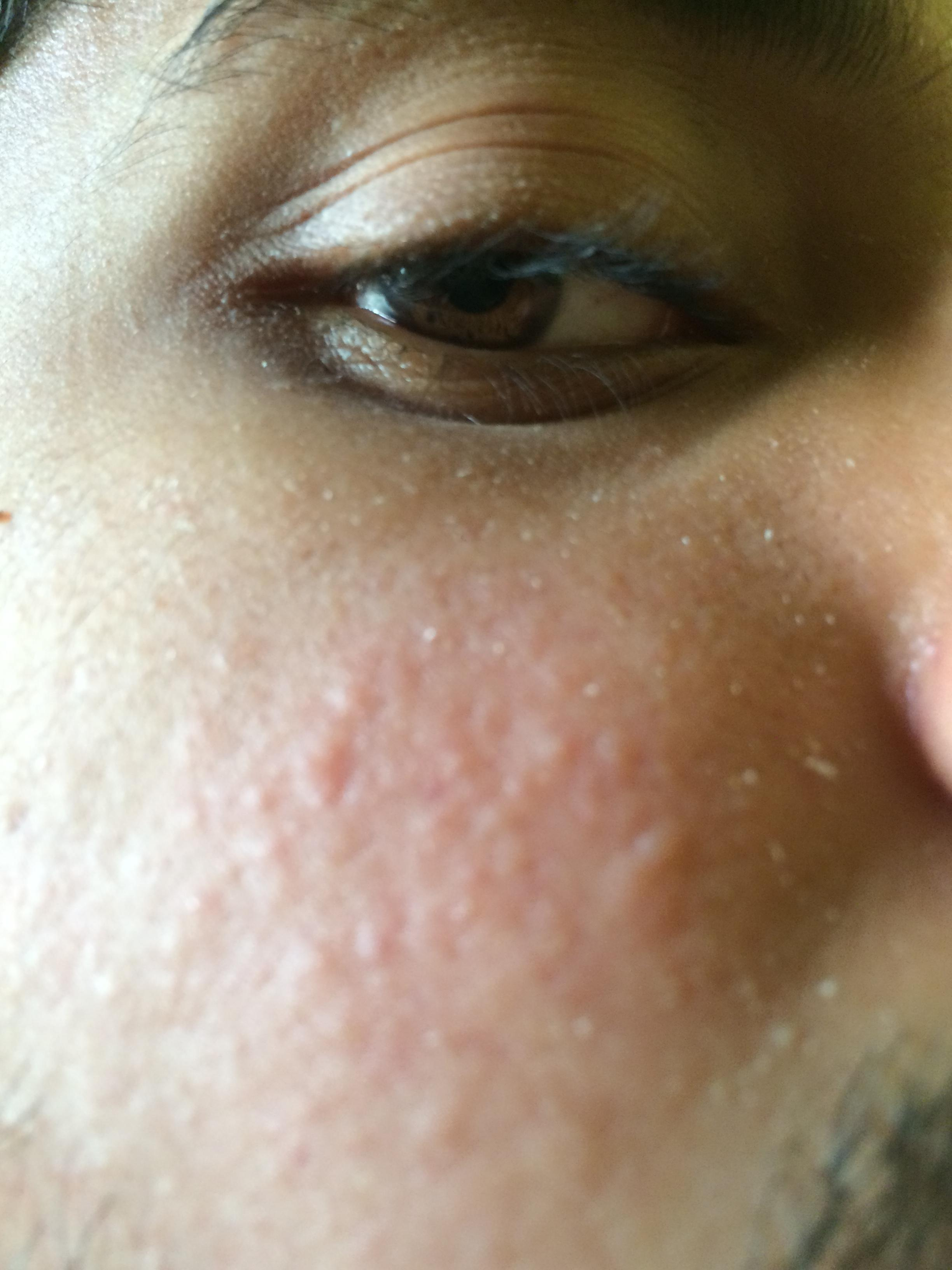 Red Bumps Hyperpigmentation Red Dark Marks By