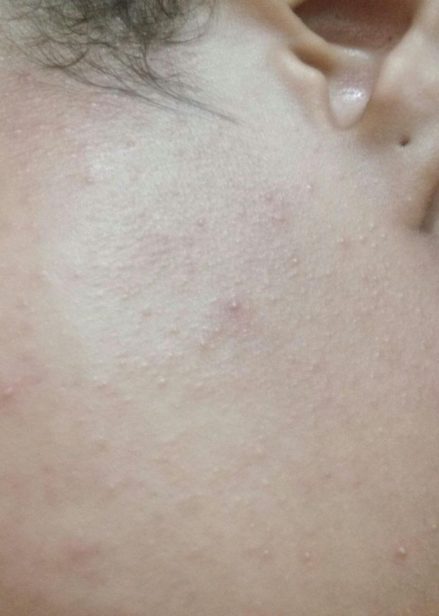 My skin looks and feels grainy and bumpy. Like sandpaper.