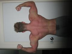 No acne, just showing off the improved musc ularity of my back