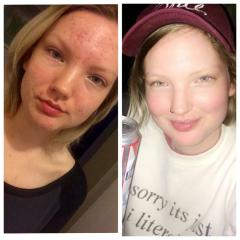 accutane is a miracle :~)