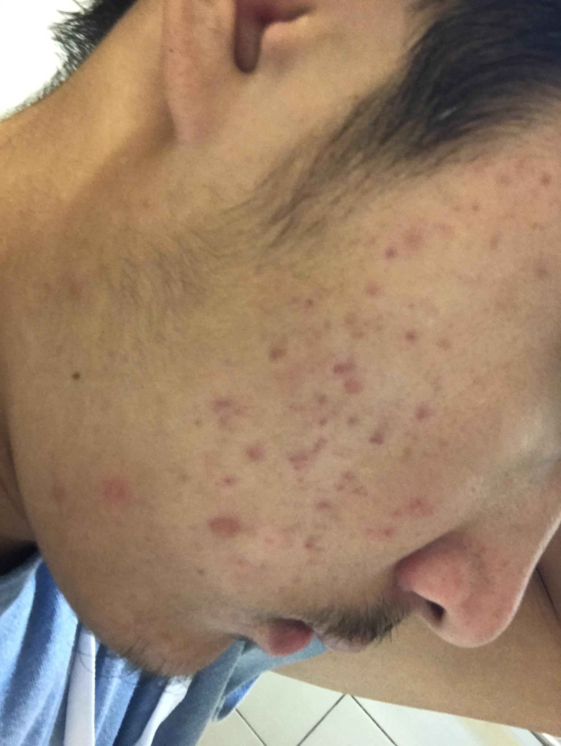how to get rid of post acne hyperpigmentation fast