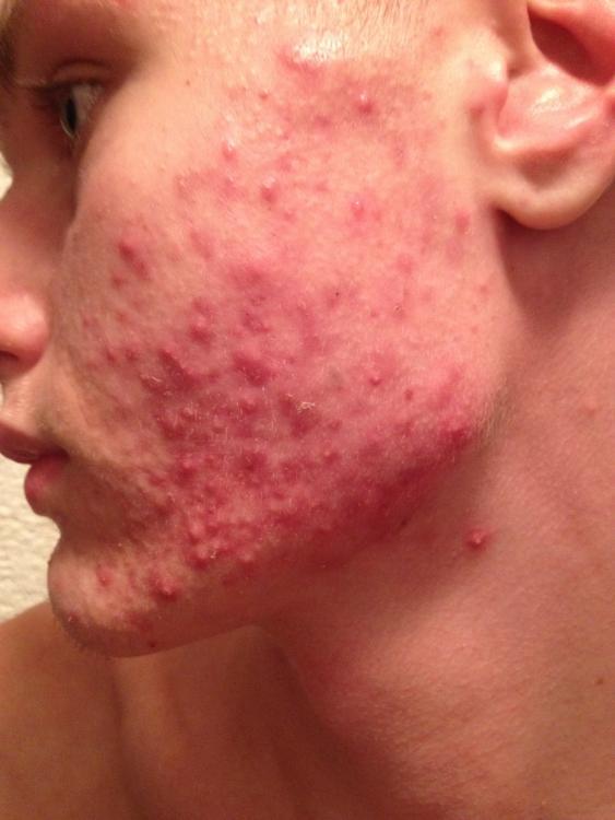 Come togliere un posto di acne