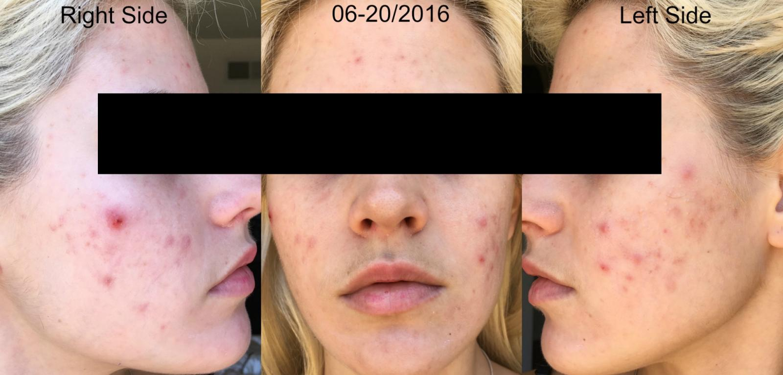 7 Weeks into Retin-A 0.08% and Aczone Regimen plus Doxycycline Week 2