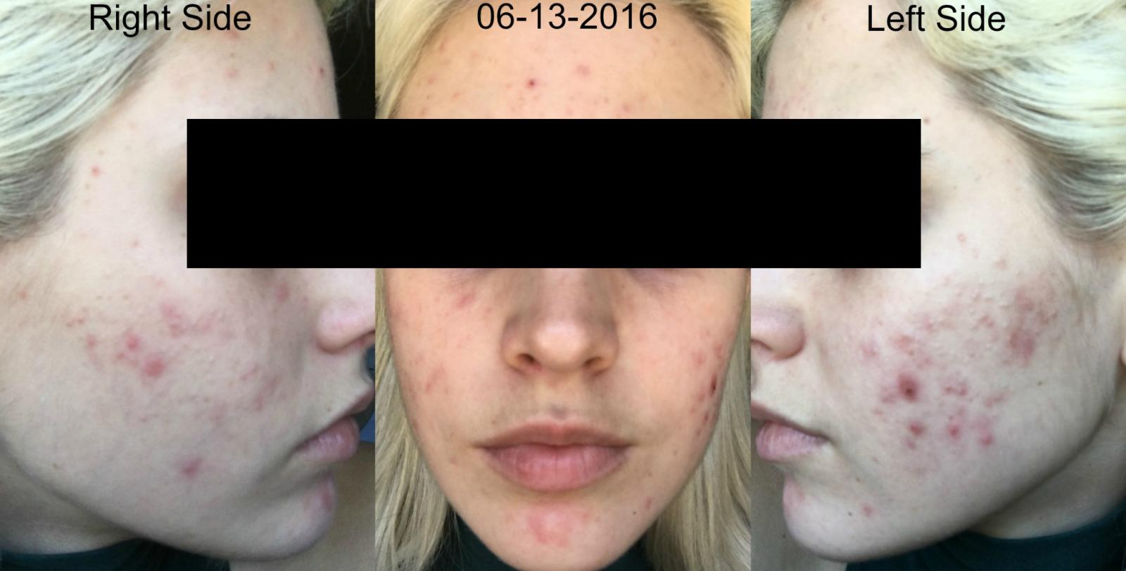 6 Weeks into Retin-A 0.08% and Aczone Regimen plus Doxycycline Week 1.jpg