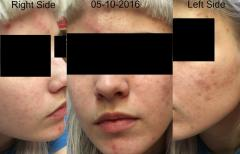 YoDerm 1 Week After Starting Retin-A and Aczone Regimen