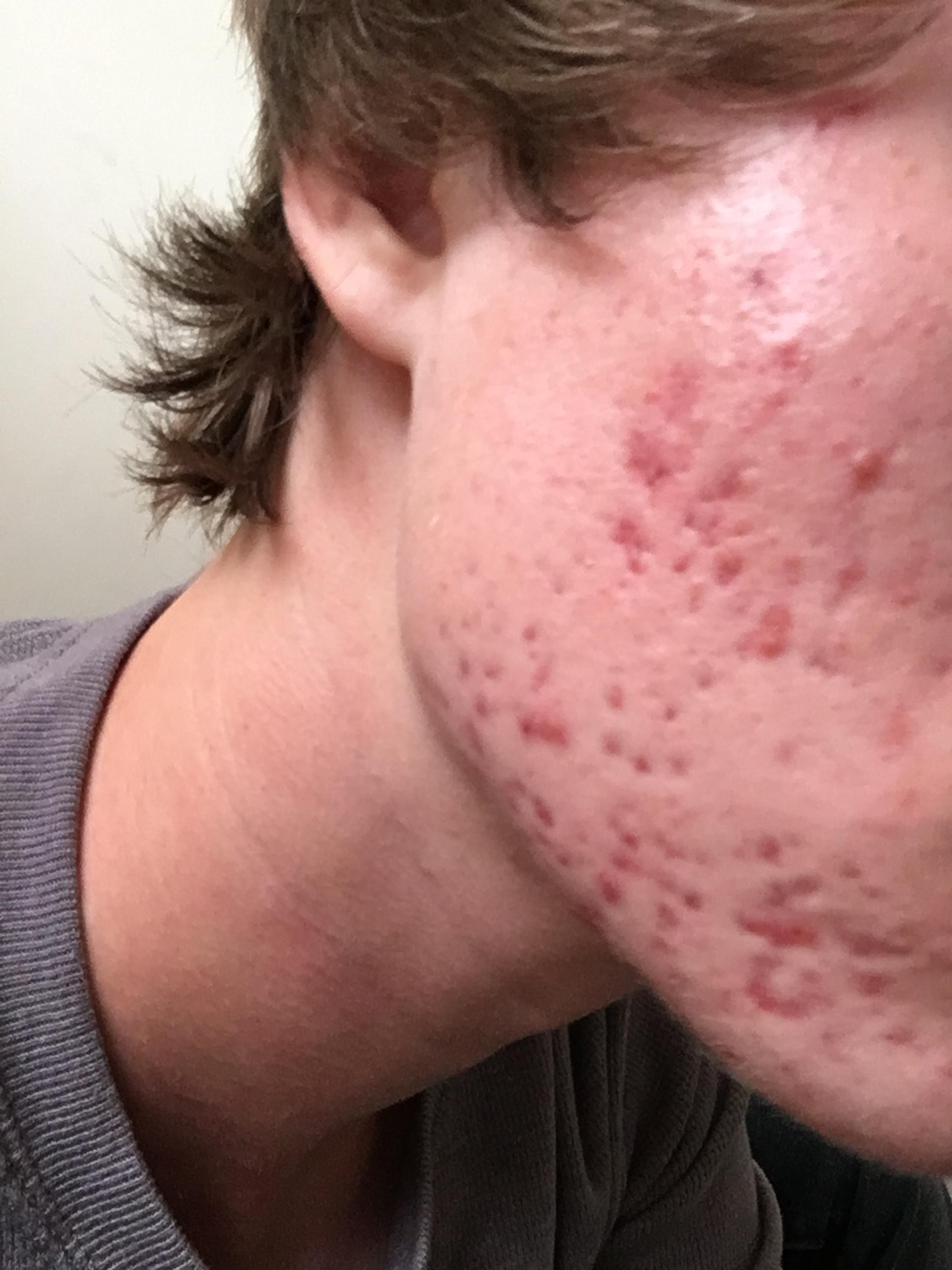 how severe is my acne, and what can be done to help it? - general