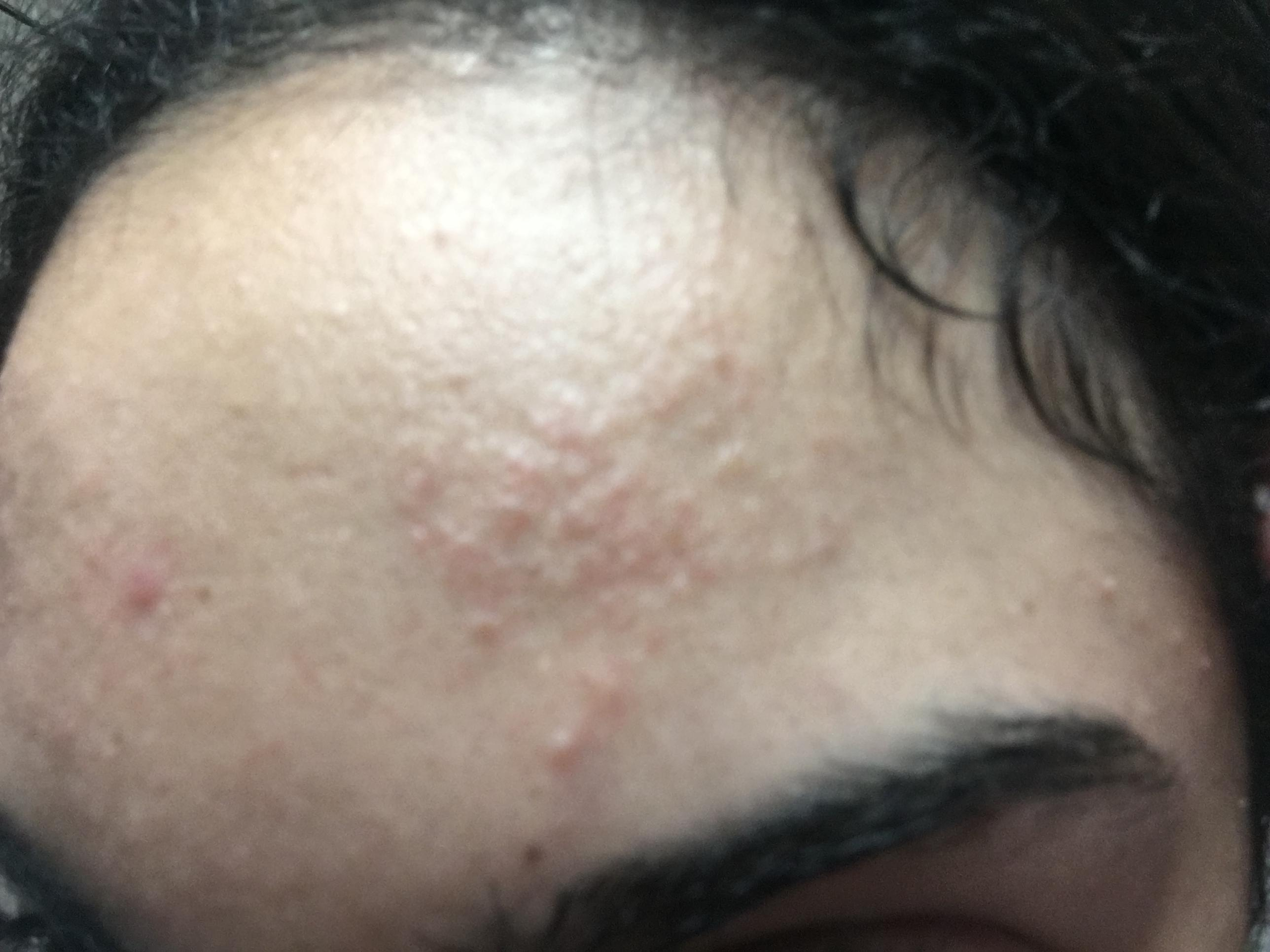 how to get rid of acne bumps on forehead