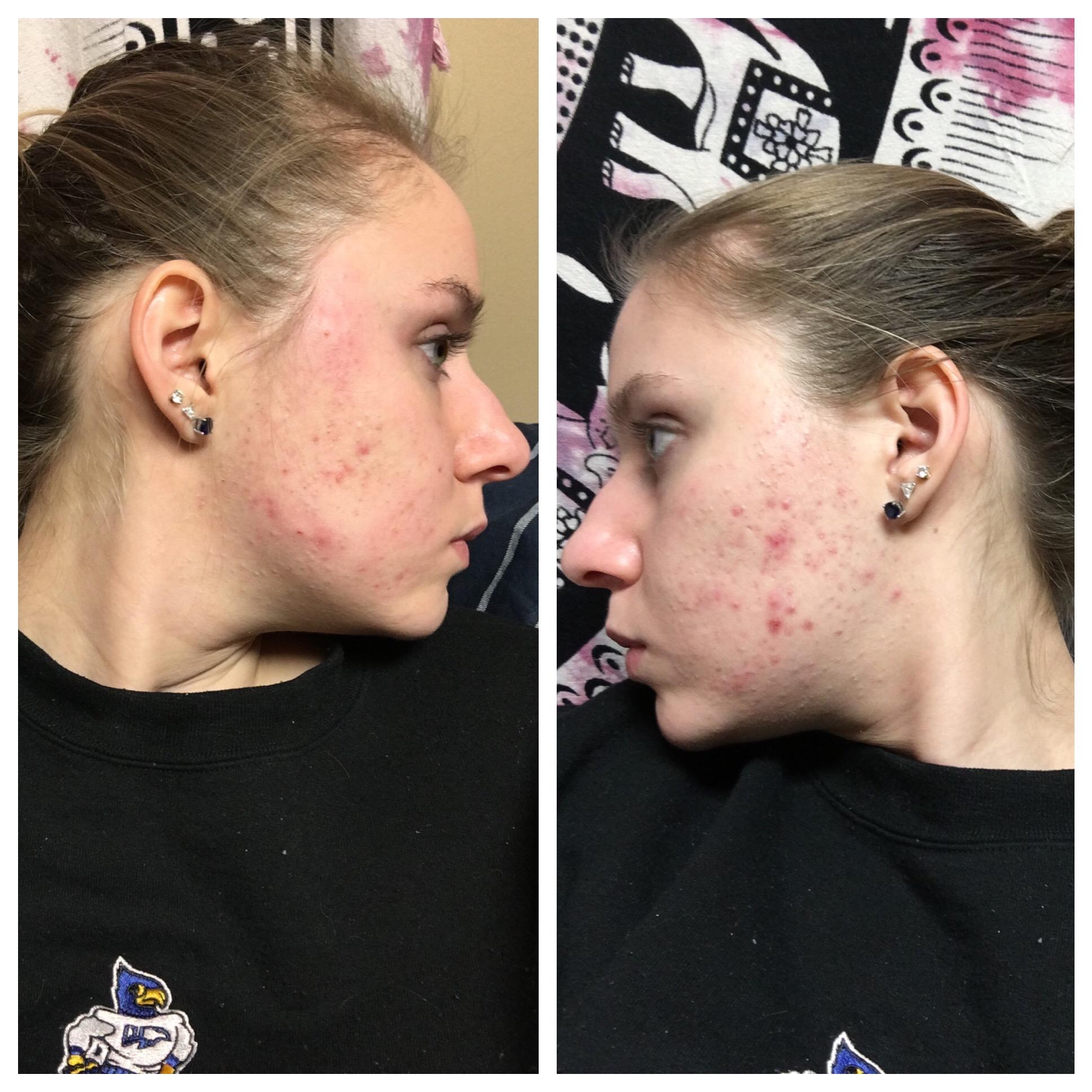 Acne Org Regimen Before After Acne Org