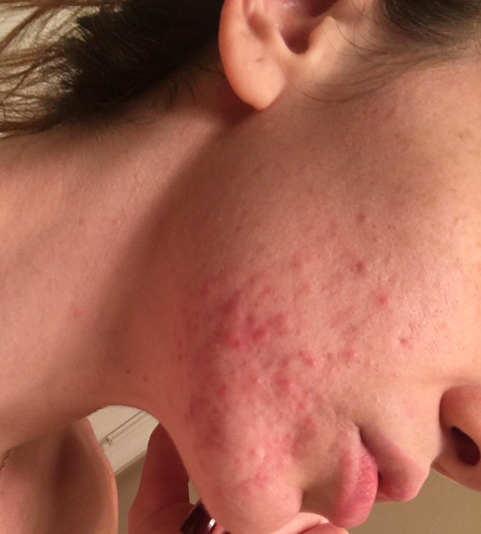 Senior citizen facial breakout pimples