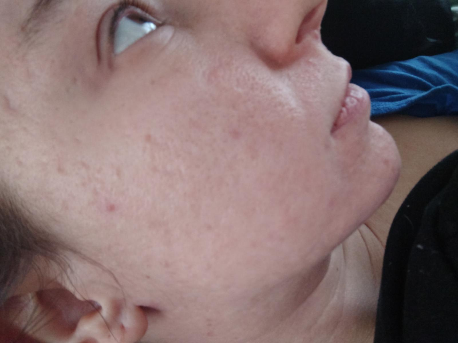 Before starting treatment - AHA & Retinol - Pictures