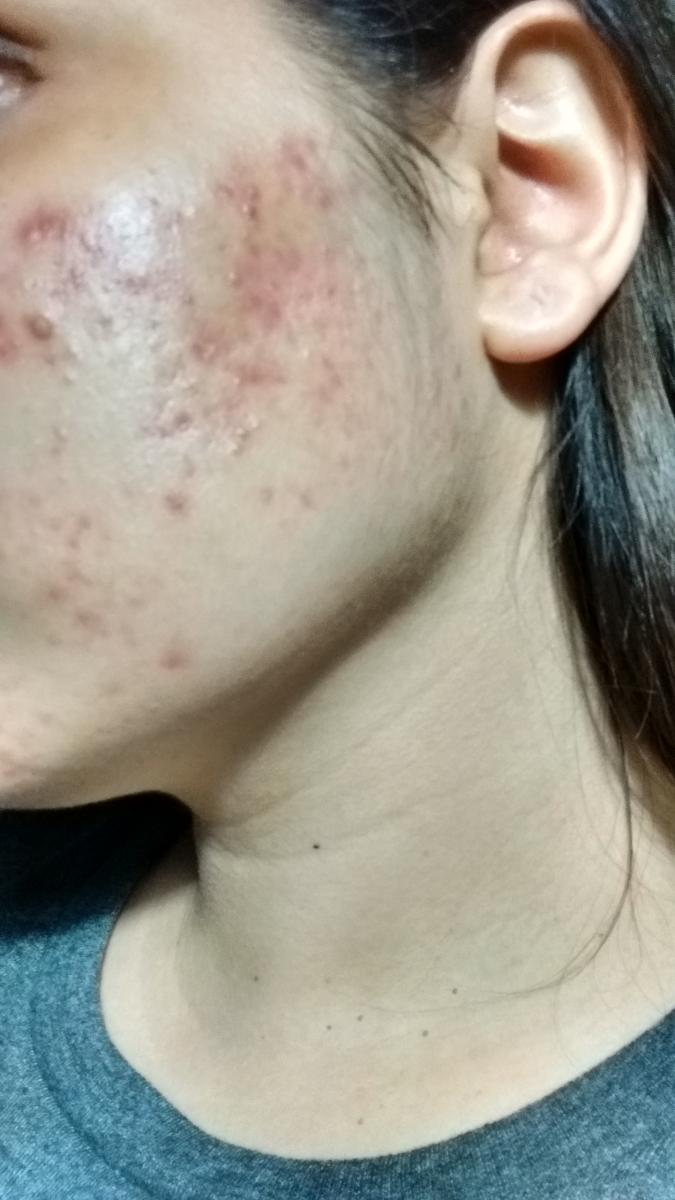 HELP me trying to find the accurate skin care regimen for this