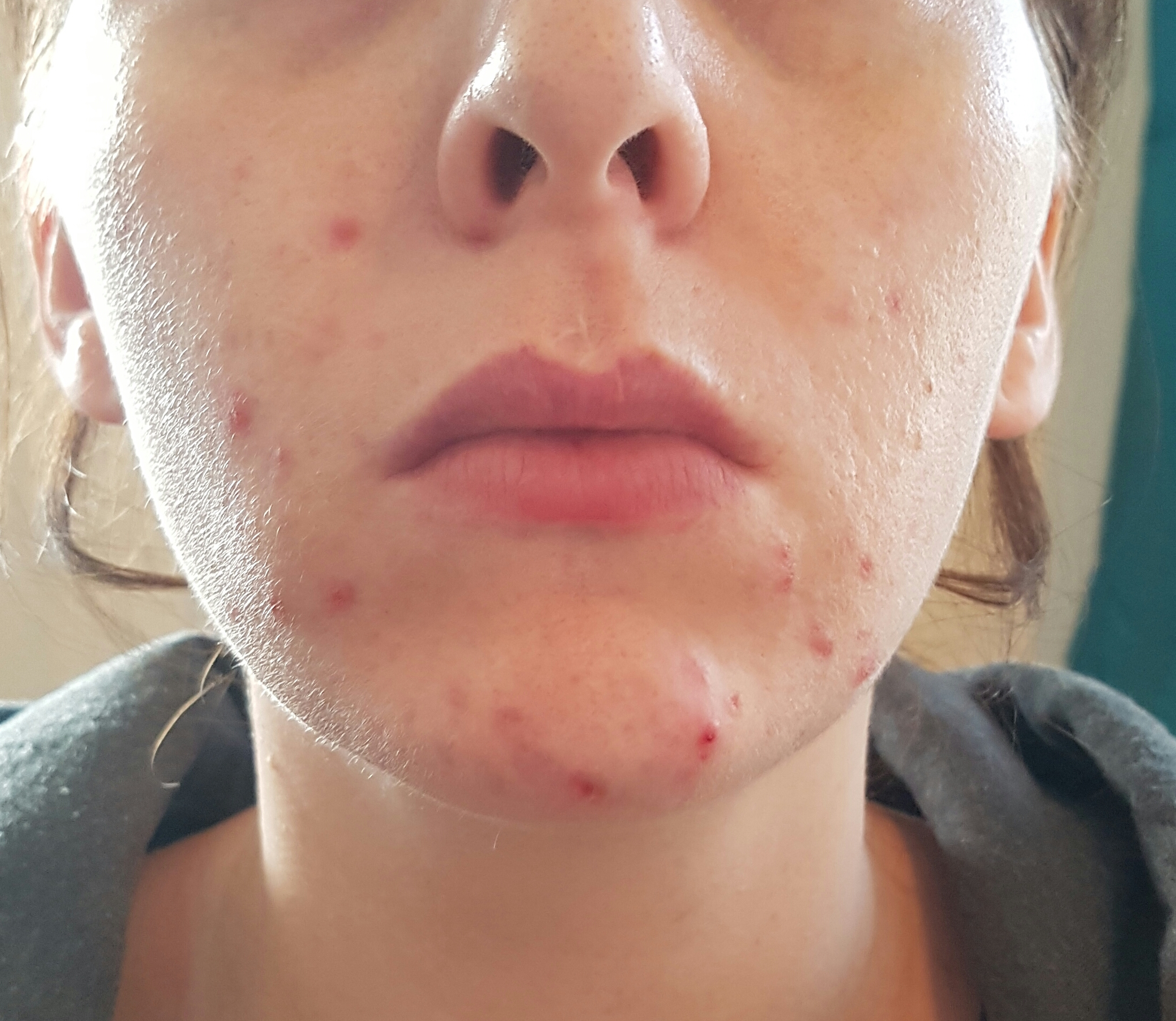 accutane side effects time