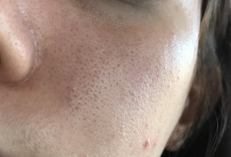 orange peel skin disaster w pictures general acne