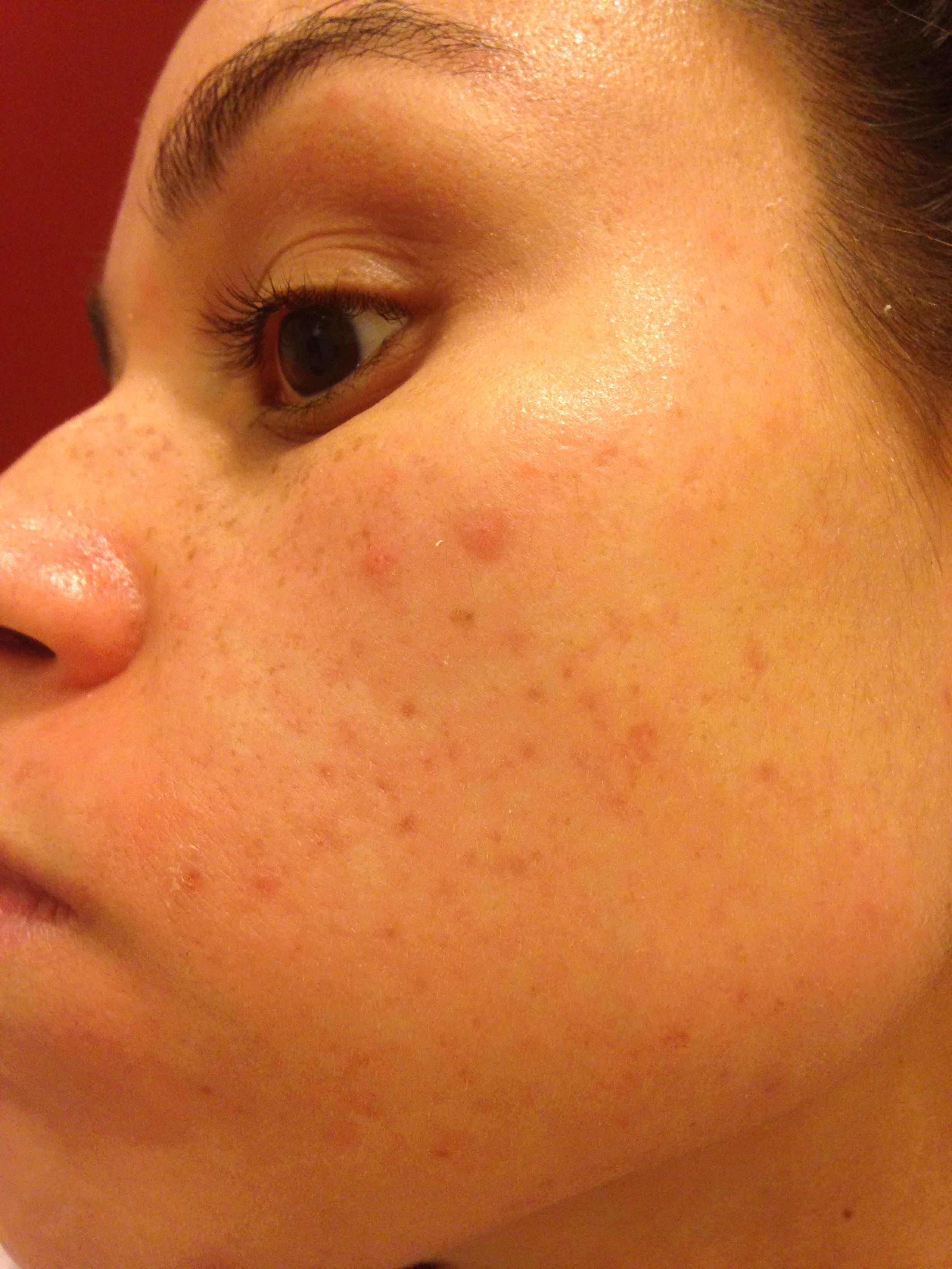 Red Marks Fading Hyperpigmentation Red Dark Marks Acne Org