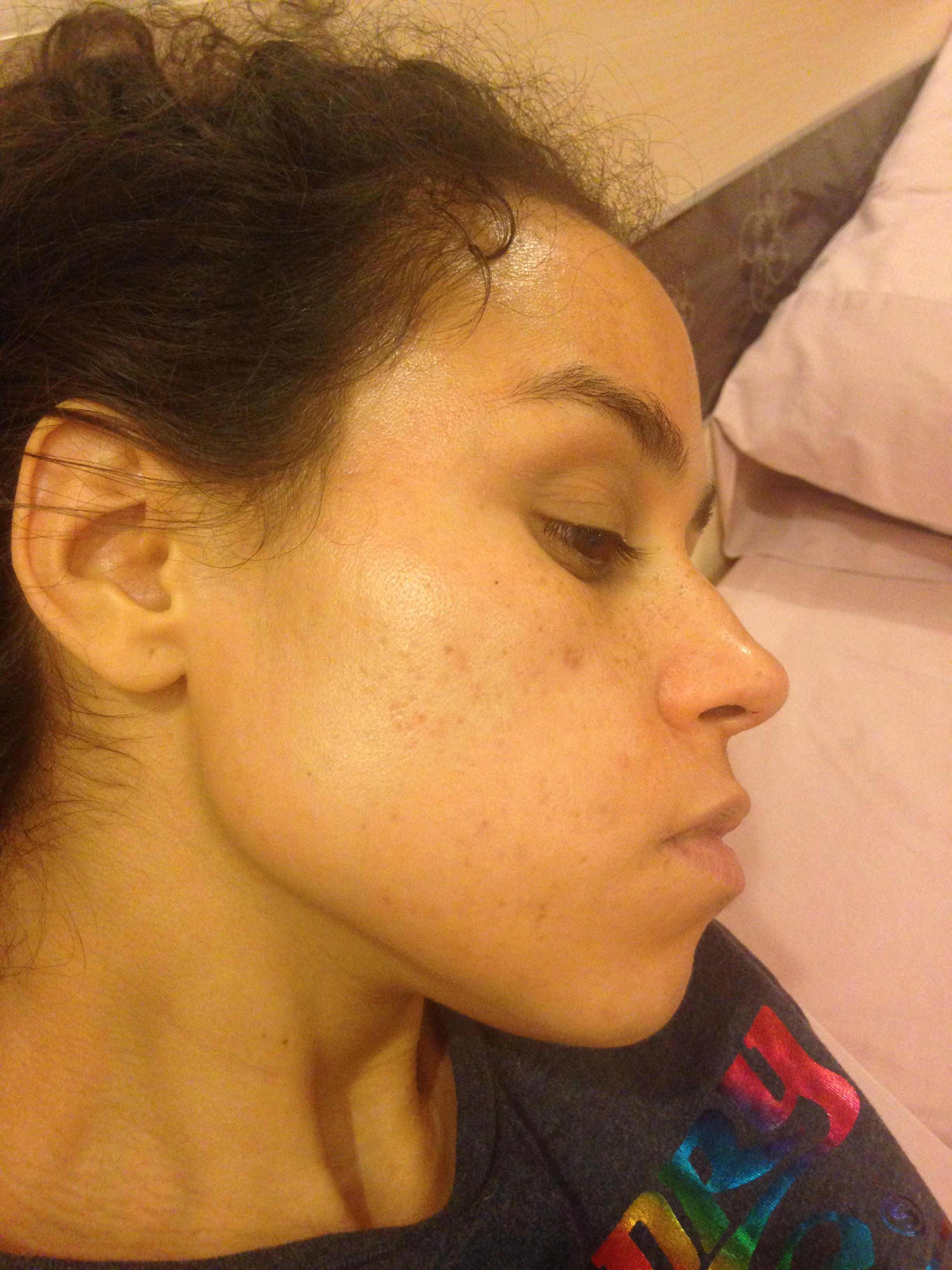 what to do about these spots? PIE? Hyperpigmentation? Pics