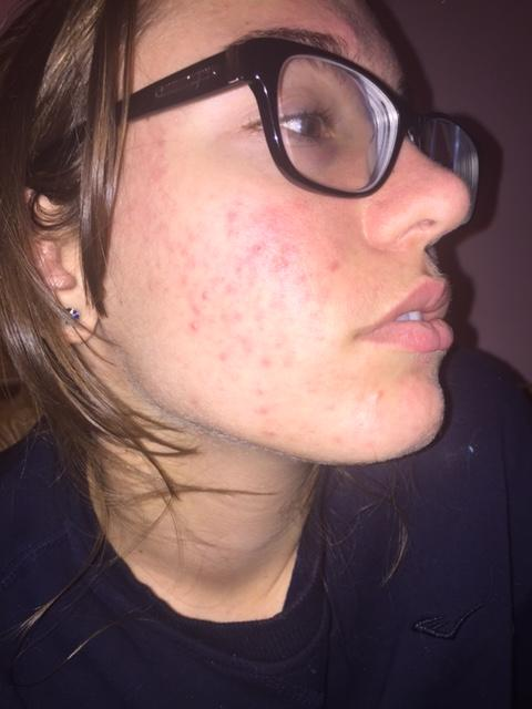 how to clear up pih from acne