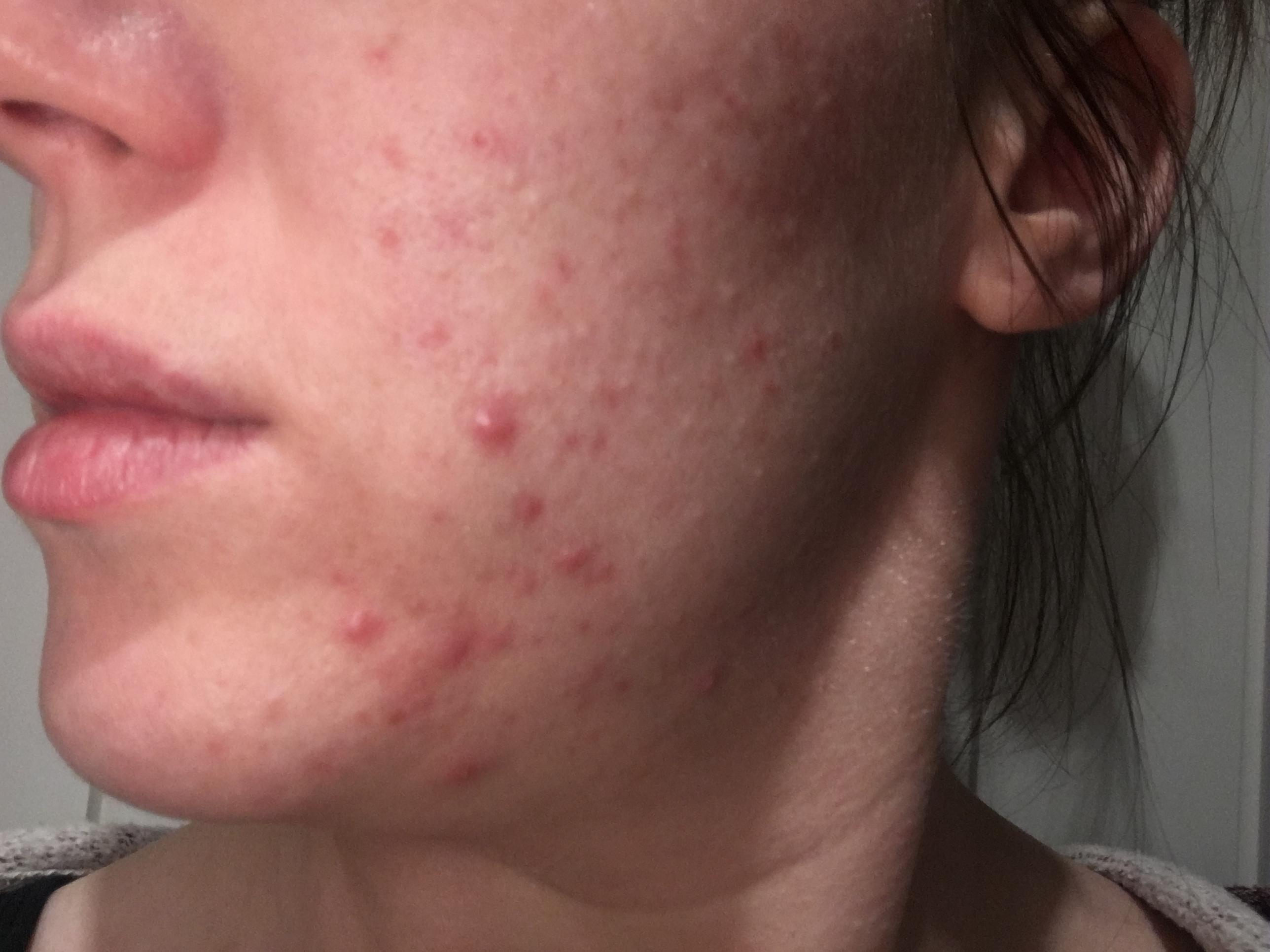 Mrswyatt S Blog Hormonal Acne Isotrex Gel 0 05 Acne