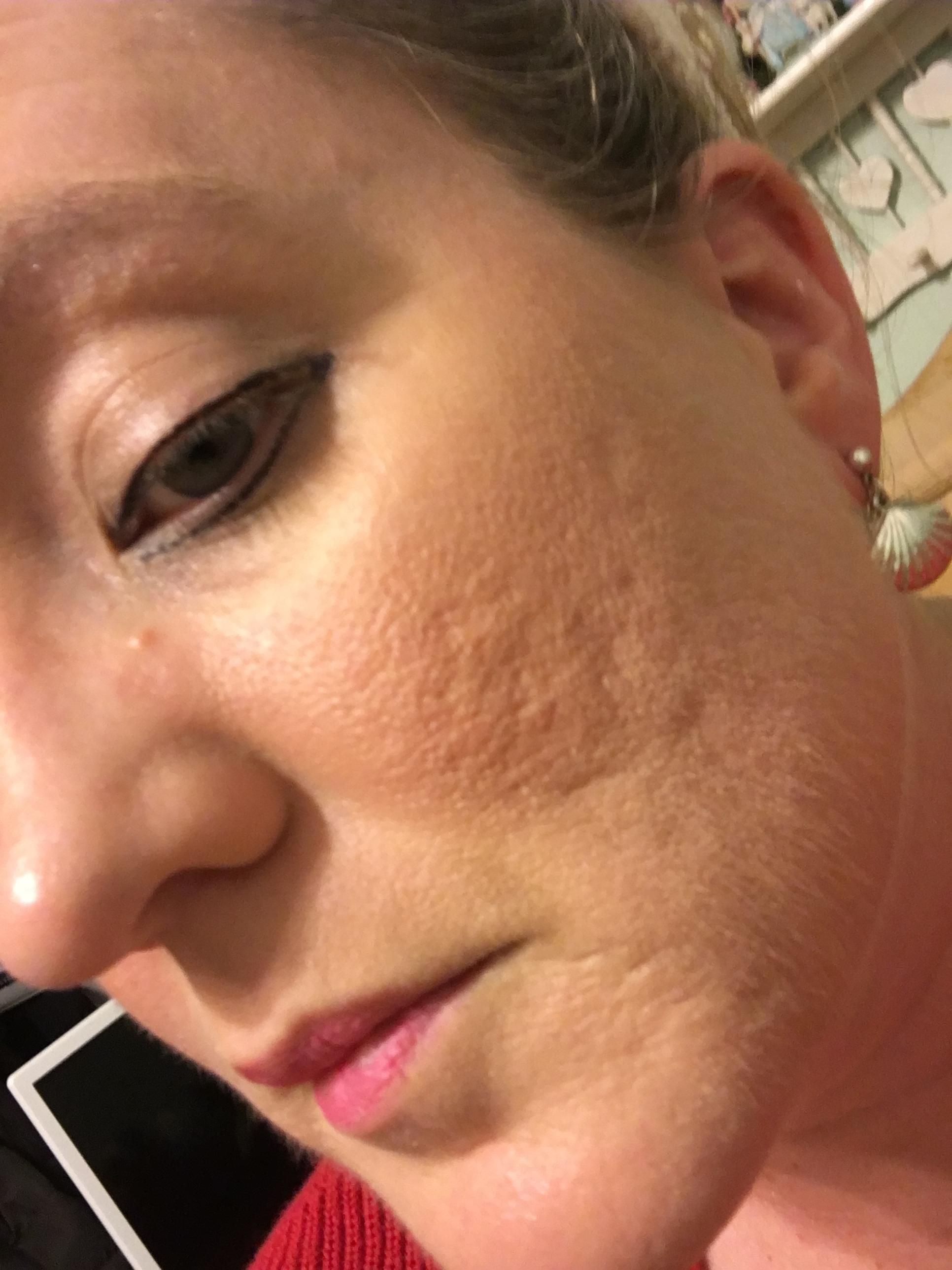 Boxcar Shaped Acne Scar