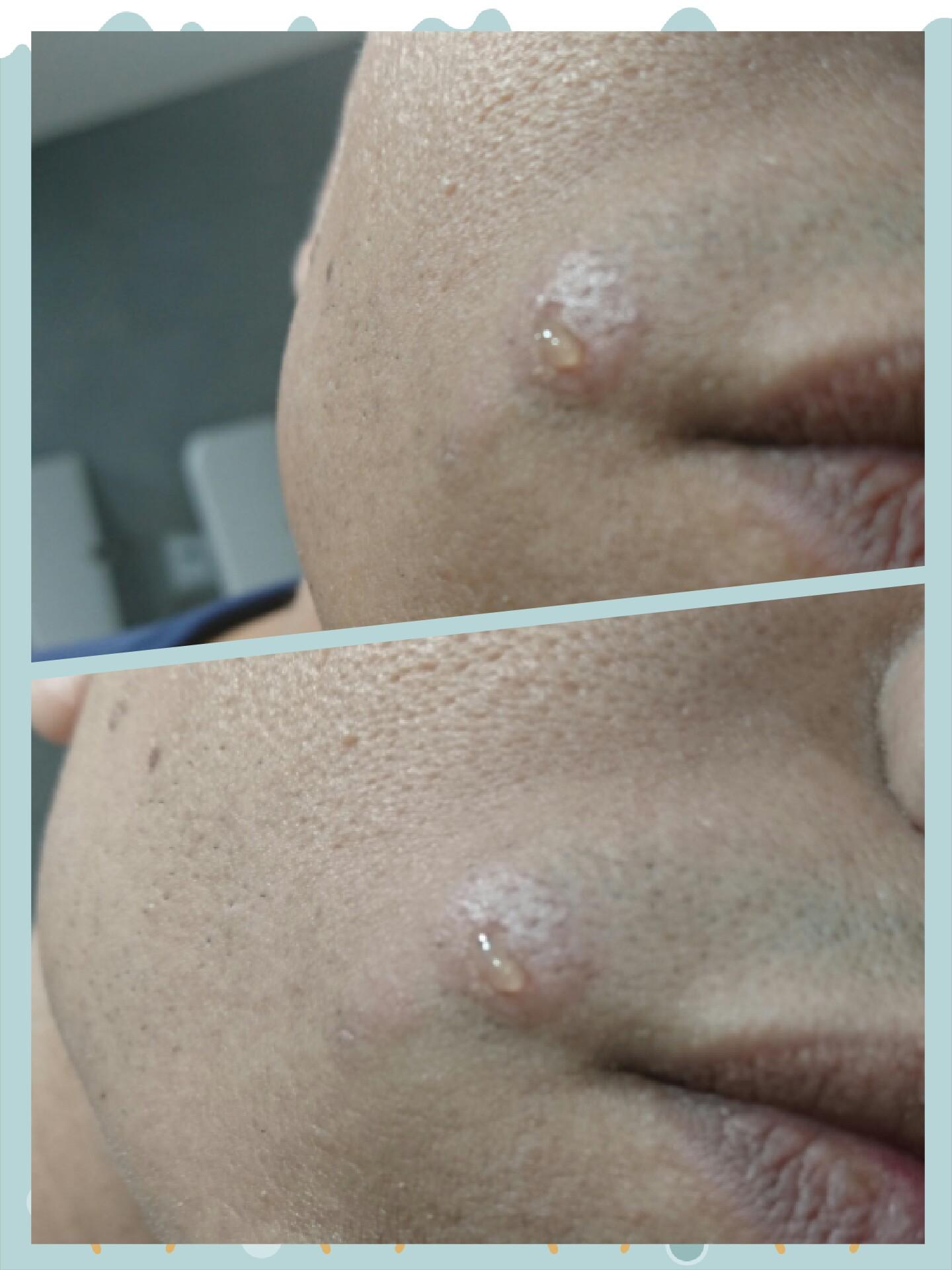 masturbation hormones acne adultg