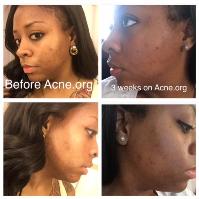 Almost 3 weeks using Acne.org