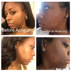 Acne.org Regimen