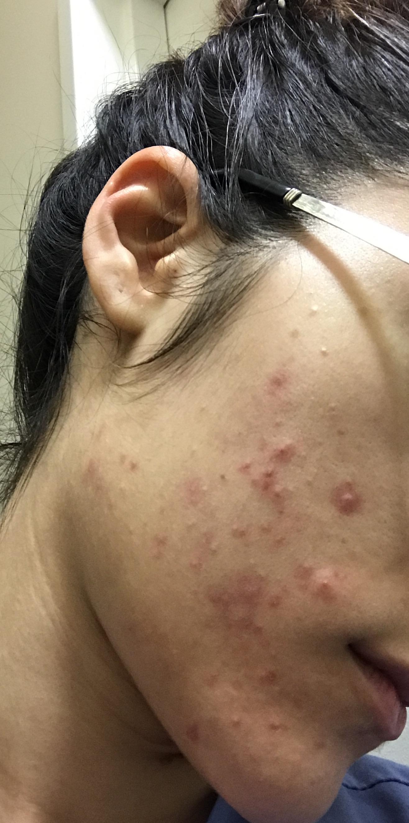 Retin A ruined my skin in 4 weeks - Prescription acne