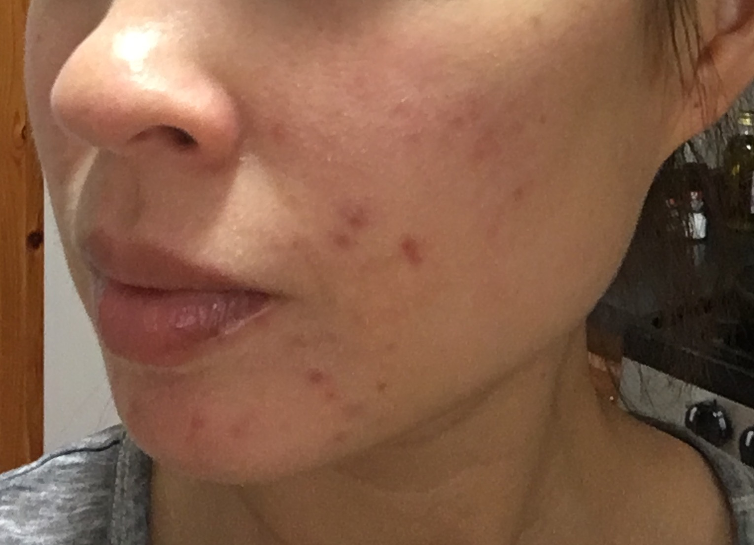 RSL Differin Journal - Acne.org Community