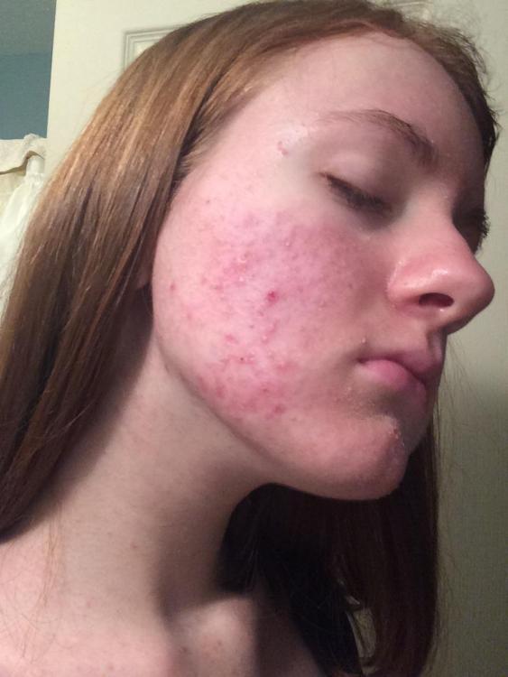 accutane truncal acne