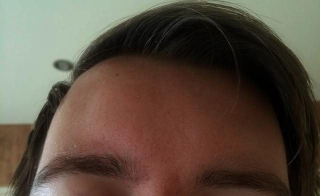 Hyperpigmentation plus some scarring?
