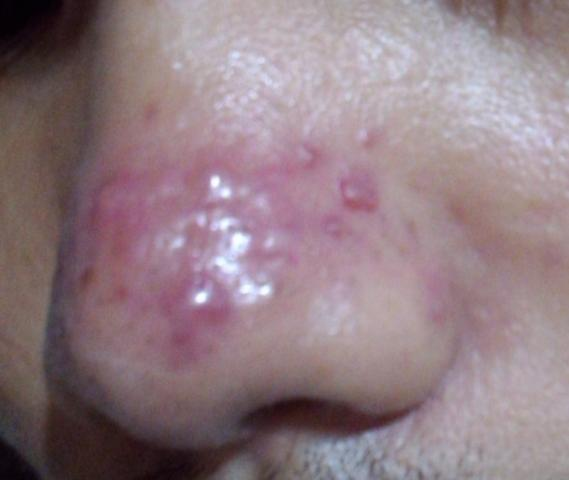 (HELP) 5-YEAR OLD NOSE ACNE