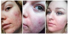 Epiduo results on 2nd 4th and 7th day.