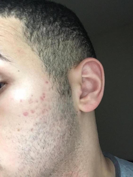 scar 1.jpg