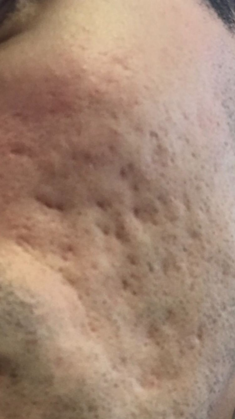 Results after 1 session of Fraxel - Scar treatments - Acne org