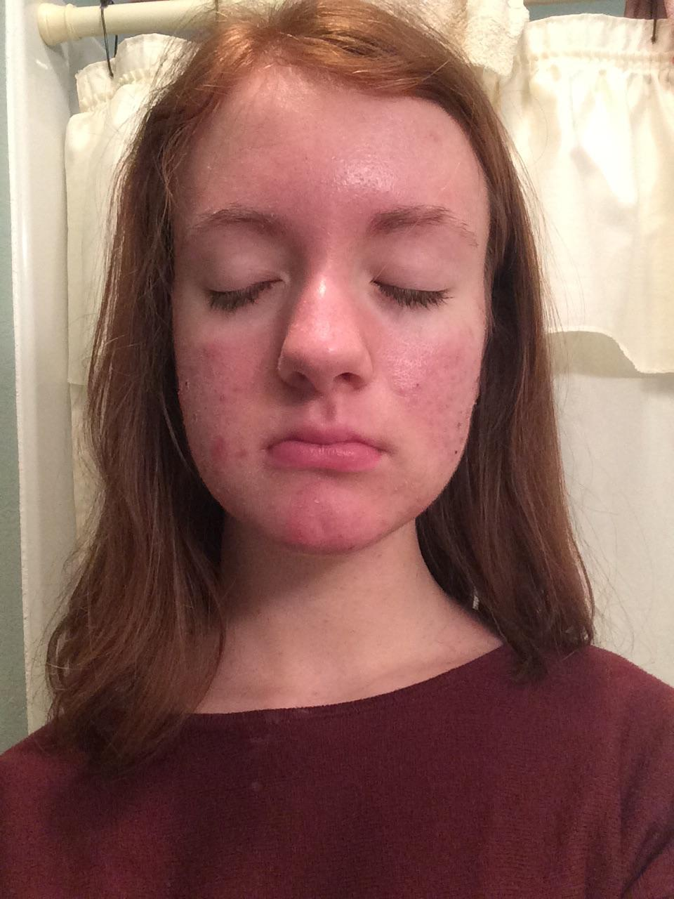 Natural remedies for post acne marks 4th grade taghypertrophic scar reduction treatment ukhow to get rid of acne scar on your backhow to get rid of acne forever home remedies pregnancyhow to get rid ccuart Choice Image