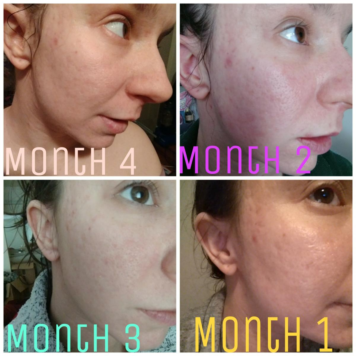 First 4 months