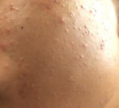 My bad acne help how to fix!