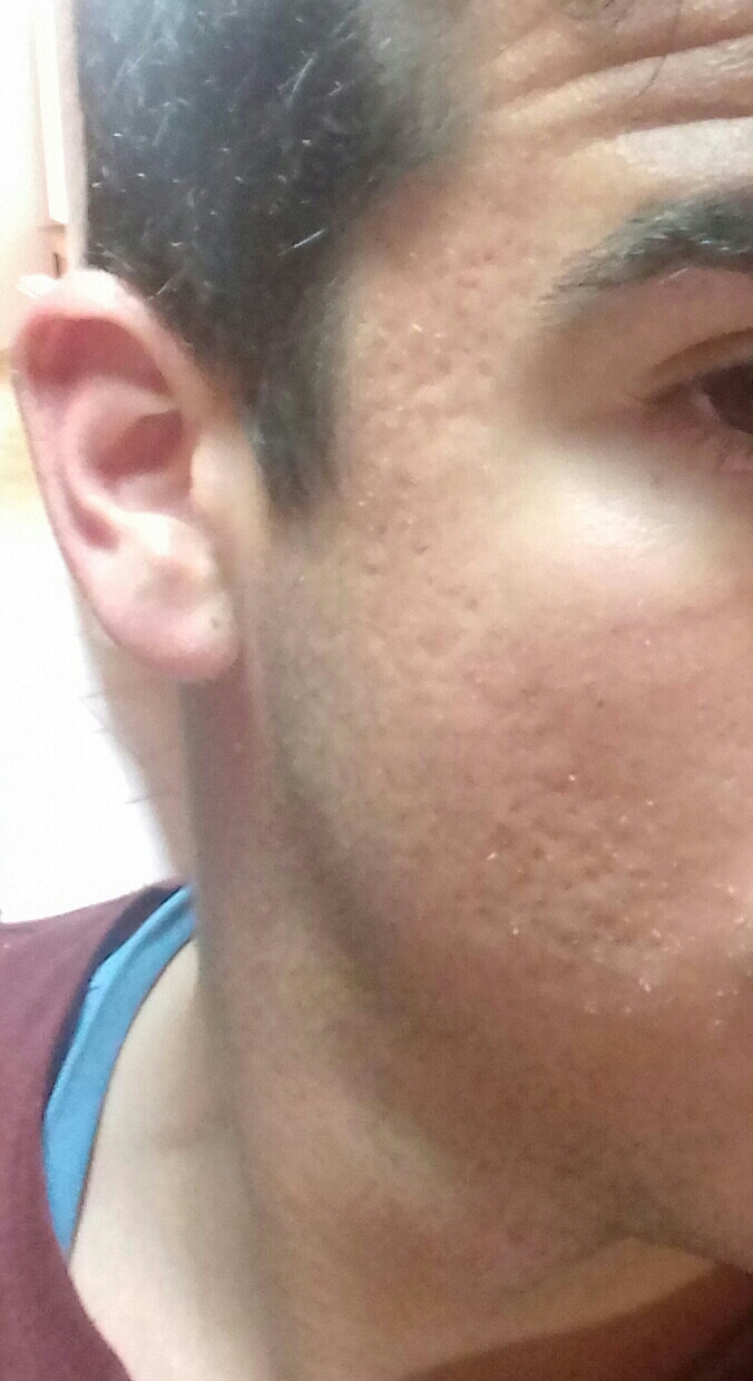 Scars After Isotretinoin Scar Treatments Acne Org