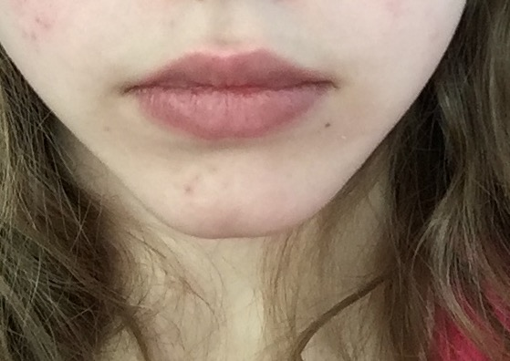accutane dry lips go away